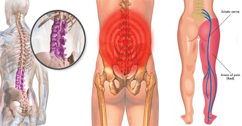 Sciatica Back Pain Essential Therapeutic Bodywork